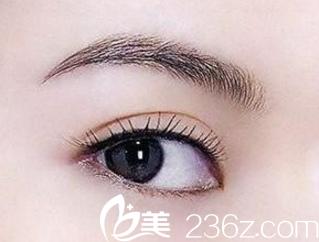 海南做双眼皮手术要多少钱?