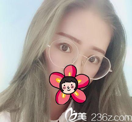 杭州美莱张霞飞主任亲自出手为我实施了全切双眼皮和开眼角手术,一个月就恢复自然啦,果然名不虚传
