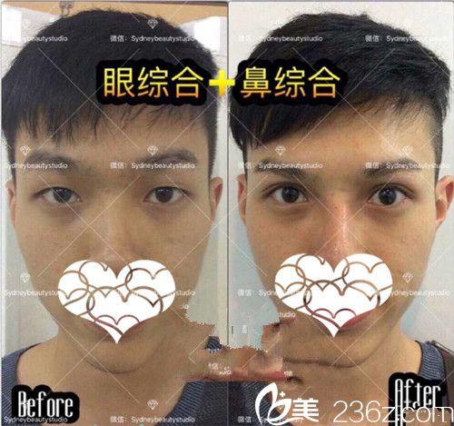 眼综合手术案例展示
