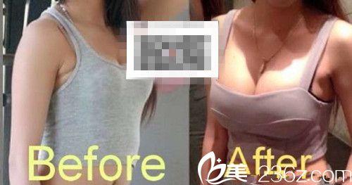 隆胸手术案例展示