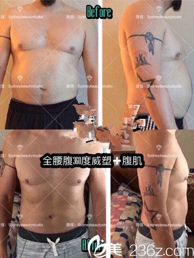 吸脂瘦身案例展示