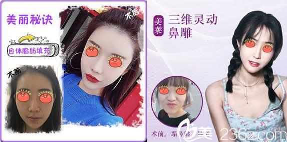 杭州美莱受网红欢迎的项目案例