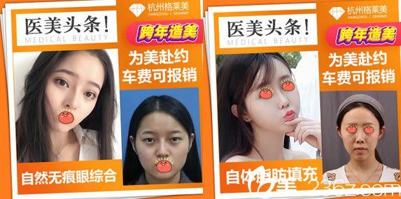 杭州格莱美打造的双眼皮和脂肪填充网红案例