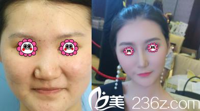 北京艺星薛轶群鼻综合案例