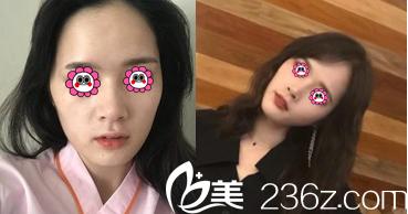 北京艺星仇侃敏假体隆鼻案例
