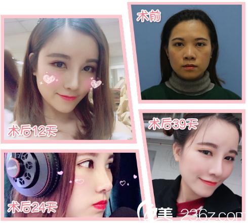 广州紫馨谷琪做的隆鼻子案例