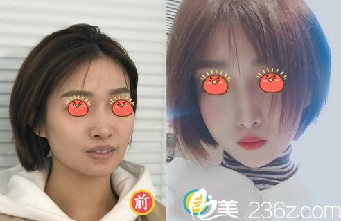 杭州美莱李波鼻综合隆鼻案例