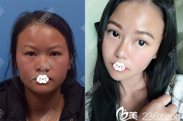 恩施奥莱假体鼻综合隆鼻案例前后对比