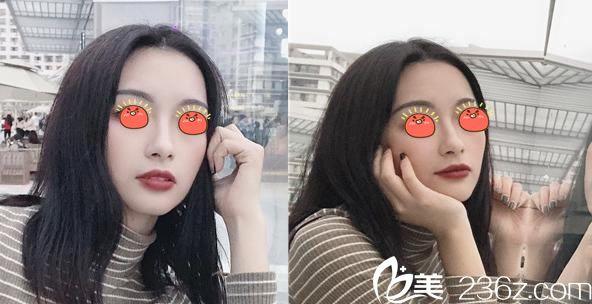 杭州美莱白玲是从北京黄寺医院过来坐诊的,20天前花2万多找她做了自体脂肪填充脸脸,效果真不错