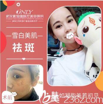 武汉壹加壹医疗美容医院杨丽萍激光祛斑案例效果对比图