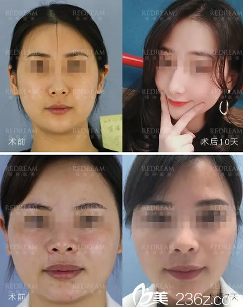 宁波薇琳中胚层速白疗法祛斑美肤真人案例
