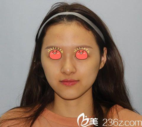 宁波薇琳医疗美容医院包奎术前照片1