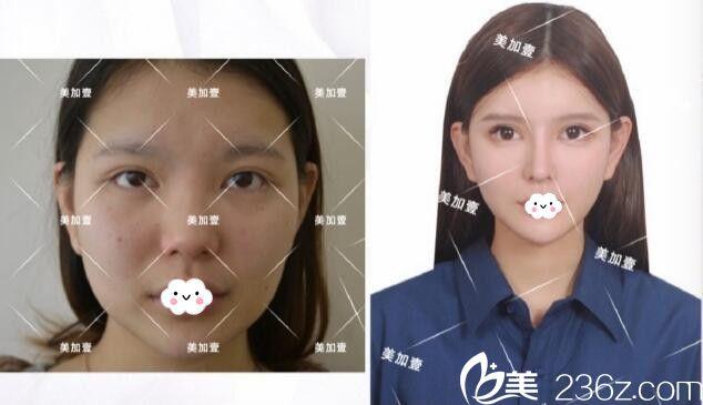 武汉美加壹克拉注射瘦脸除皱瘦脸针案例对比图