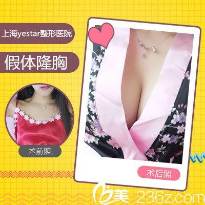 上海yestar彭才学隆胸前后变化图