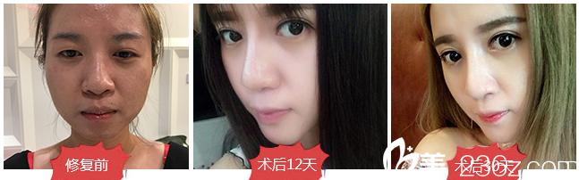 广东画美姜友定双眼皮失败修复案例