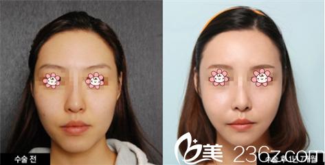 韩国迪美面部埋线提升效果图