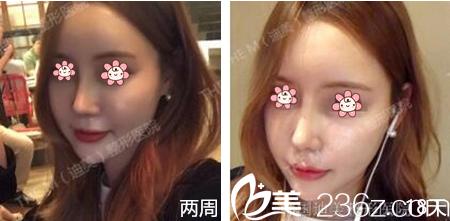 我在韩国留学,实地考察了两个月较后去了韩国迪美(THE M)整形李柱洪那儿做的鼻综合。