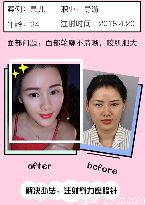 深圳阳光整形医院瘦脸针案例