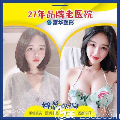 深圳富华胡俊杰隆胸案例
