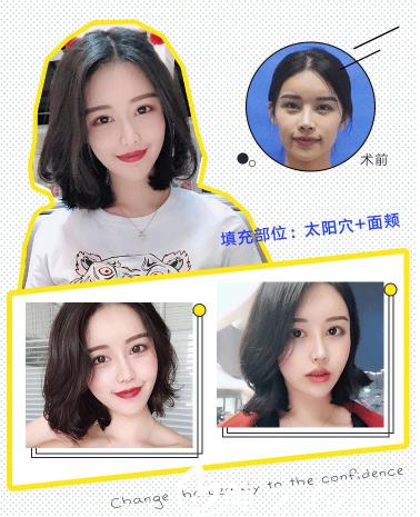 深圳富华郭建自体脂肪全脸填充案例