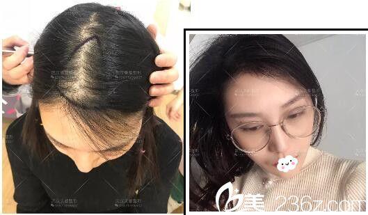 武汉美都医疗美容熊雯头发稀疏加密案例效果对比图
