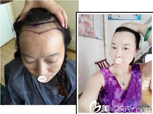 武汉美都医疗美容发际线种植真人案例效果对比图