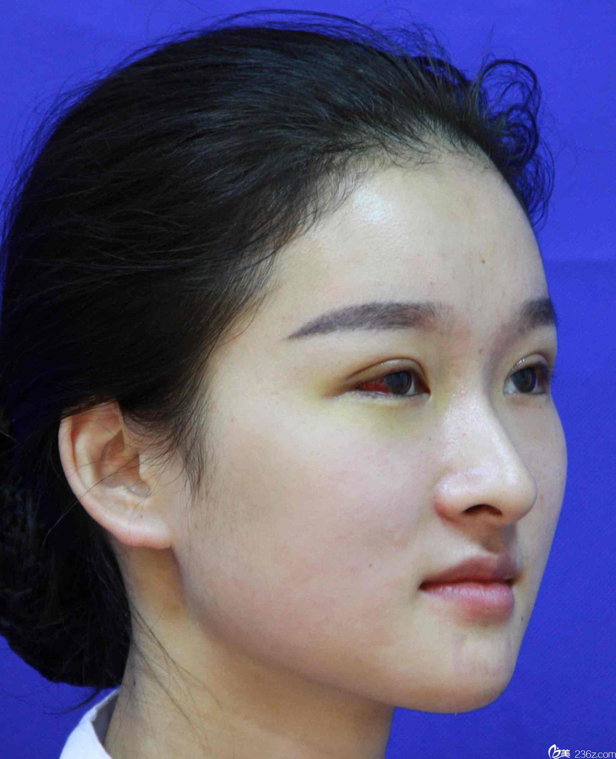 维多利亚整形max美眼术+瘦脸除皱瘦脸后第7天恢复效果