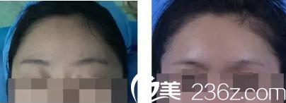 填充眉弓案例2