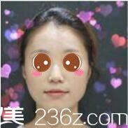 上海美莱医疗美容医院申涛术前照片1