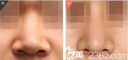 鼻整形前后效果对比