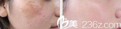激光祛斑嫩肤真人前后对比