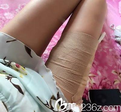 做大腿抽脂后的照片