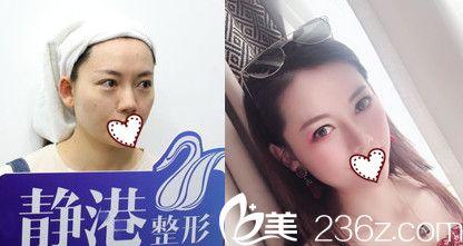 杭州静港硅胶隆鼻效果很自然