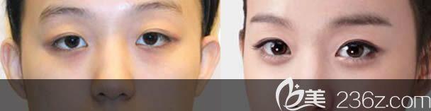 长春正韩整形内切祛眼袋案例对比图