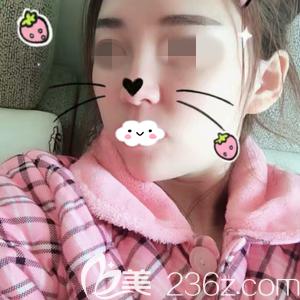 选择了离家近的湘潭华美医院的宾仁主任做玻尿酸填充全脸,一周后的效果很满意