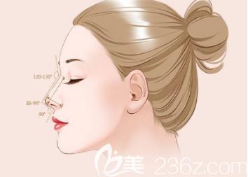 假体隆鼻可以维持多久