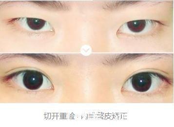 朱志娟医生的切开双眼皮案例