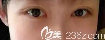 案例分享:长春伶秀天成院长魏鸿雁给我做双眼皮失败修复的亲身经历和感受