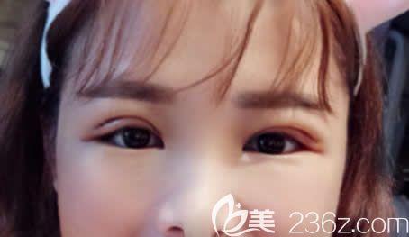 南宁梦想唐超给我做全切双眼皮术后第4天