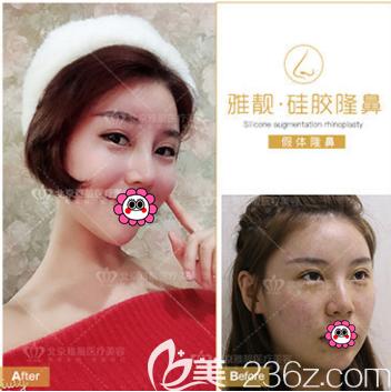 北京雅靓隆鼻整形特惠进行中!硅胶隆鼻价格低至2980元