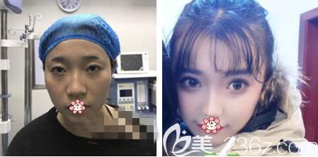 重庆艺星整形哪位医生做双眼皮比较好