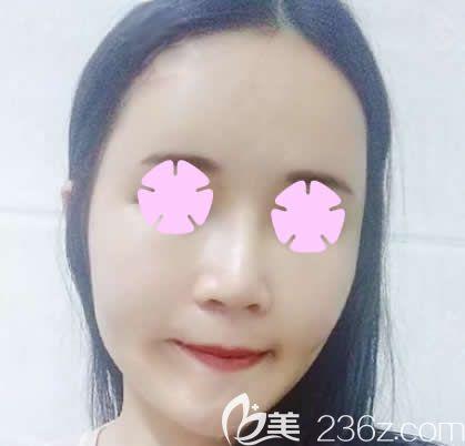 我在南宁梦想做全脸自体脂肪填充后第3天