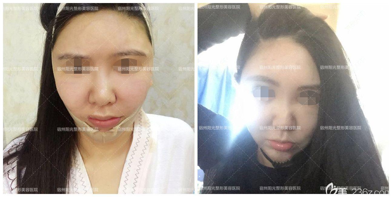 蒋相锋做面部填充自体脂肪+吸脂瘦脸术后3-5天恢复图