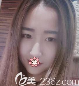重庆艺星整形美容医院罗宁川术前照片1