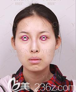 北京悦然医疗美容诊所术前照片1