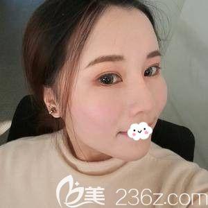 天津时光整形美容门诊部姚庆君术后照片1