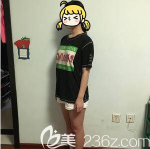 北京艺星医疗美容医院郑仕平术前照片1