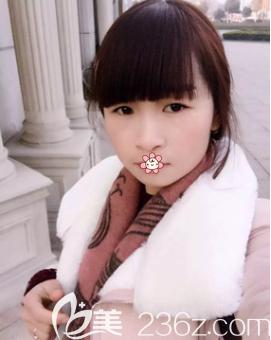 赵蓉激光祛雀斑术后3个月