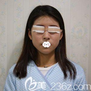 荆州华美李杰埋线双眼皮术后即刻效果图