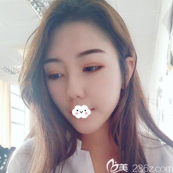 荆州华美李杰埋线双眼皮2个月恢复图